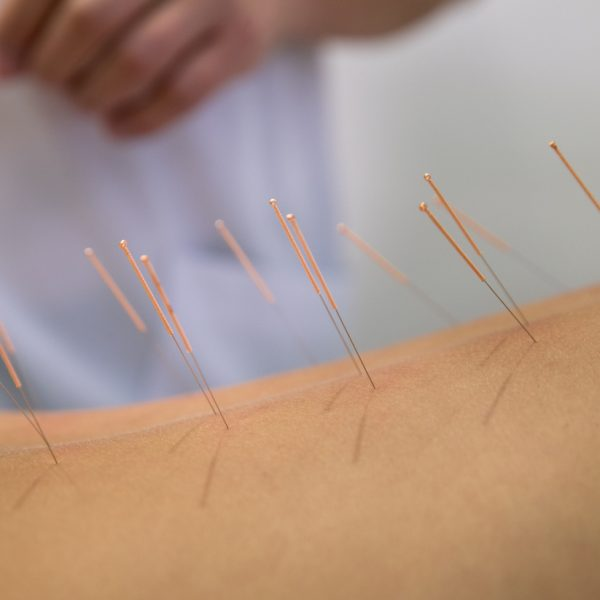 Annapolis Acupuncture