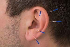 Auricular Acupuncture Annapolis